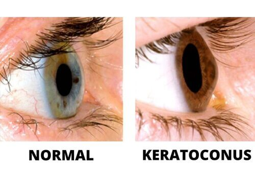 What is Keratoconus A Clear Explanation of the Rare Disease 2