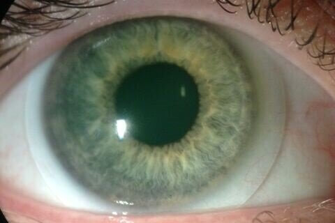 sclerallensfullview-1