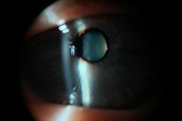 cataractOS-1