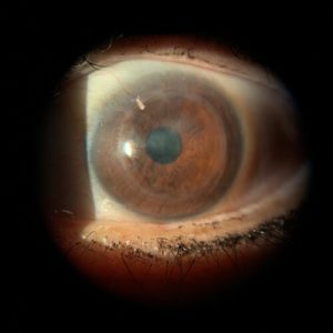 corneal transplant 1
