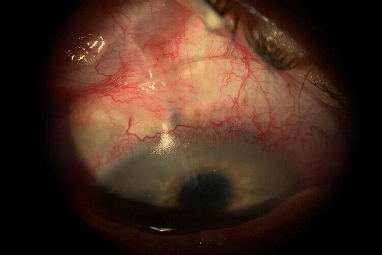 eyeprintovertubeshunt-1