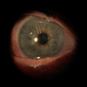 glaucoma+tube