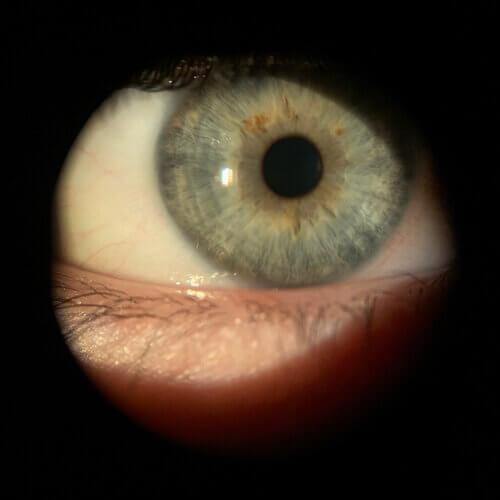 OD+cornea