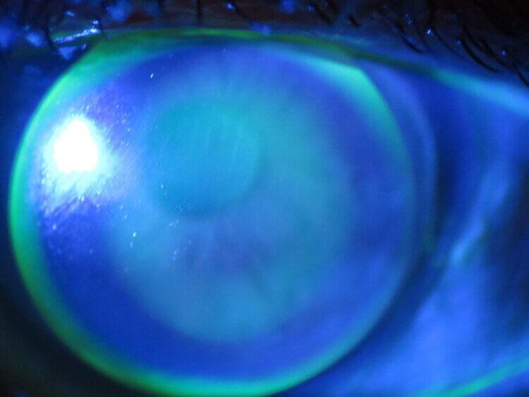Contact+lens+corneal+GP+after+lasik2