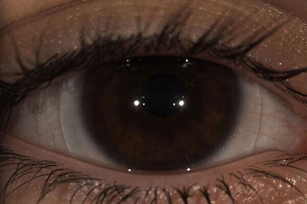 Scleral Lens On Eye