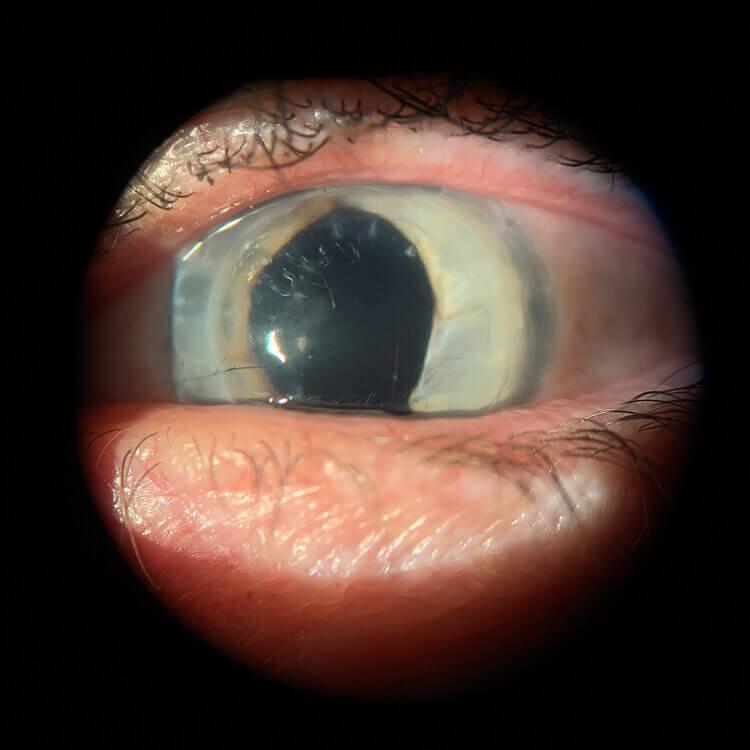 aniridia+and+corneal+transplant