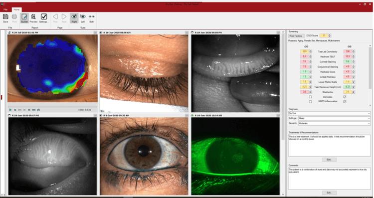 dry+eye+tests