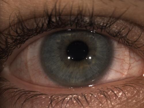 epp eye upclose