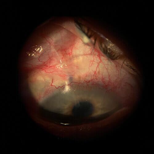 eyeprint+over+tube+shunt
