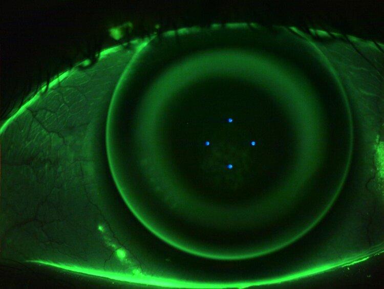 orthokeratology+lens+on+eye