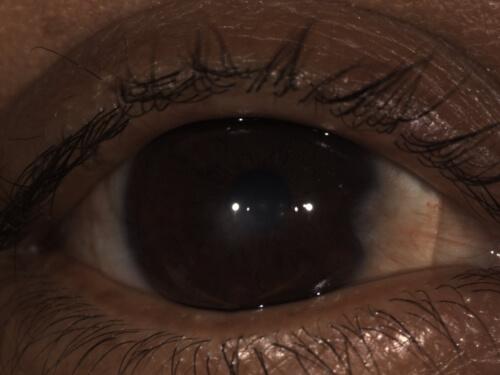 scleral lens eye upclose