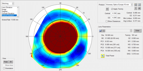 scleral+elevation+right+eye