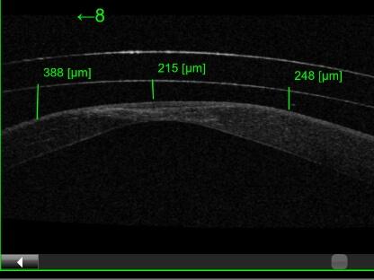 severe keratoconus eye