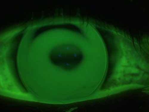 Keratoconus+lens