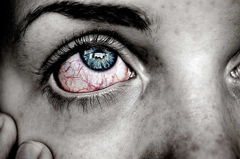 red+eye