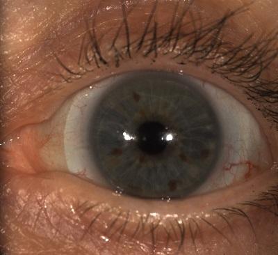OS Latitude lens Medmont