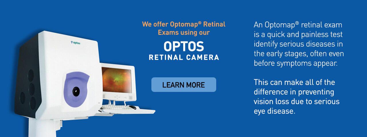optos advanced technology