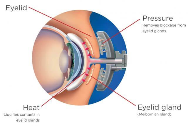 EyeDiagram