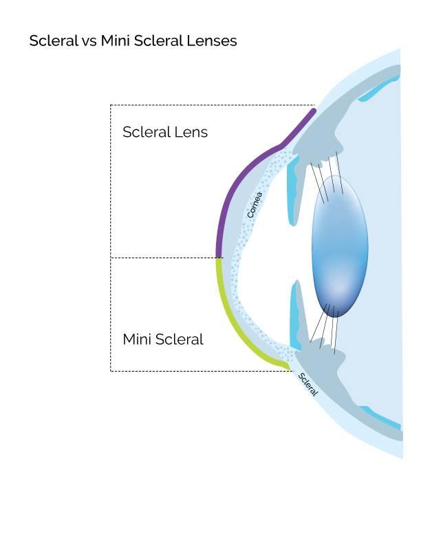 Sclereal MiniSclereal Lenses.jpg