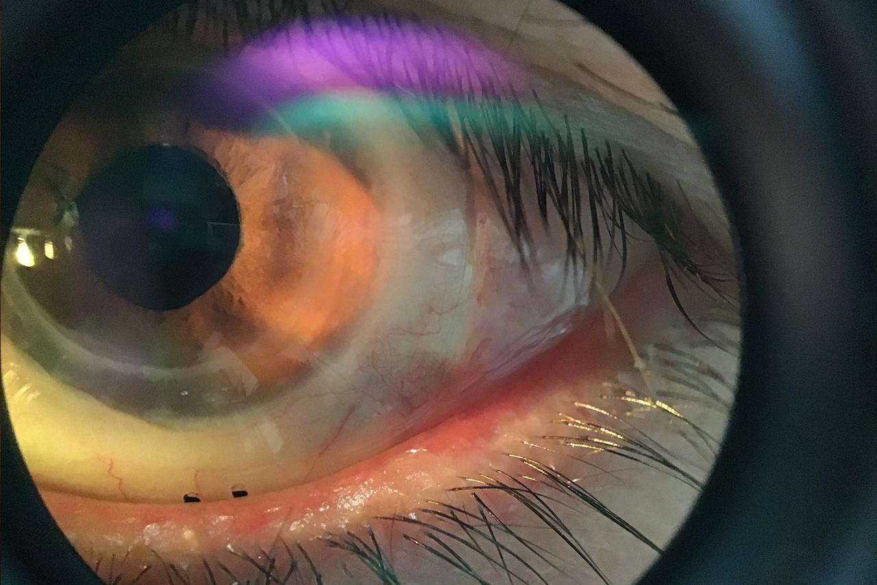 Eye With Eyeprint Pro 1280×853