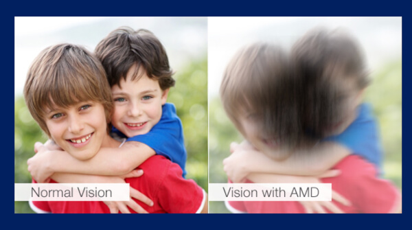 Vision-Simulation-With-Macular-Degeneration