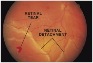 retinal tear detachment in Mississauga, Ontario