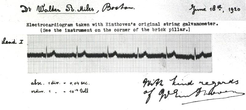 Tufte sparklines ECG original electrocardiogram Einthoven
