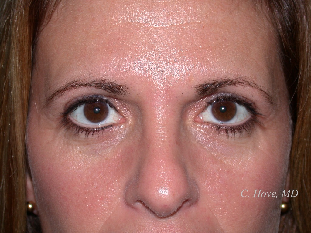 Drooping Lower Eyelid