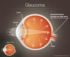 Oklahoma City Glaucoma Laser Surgery
