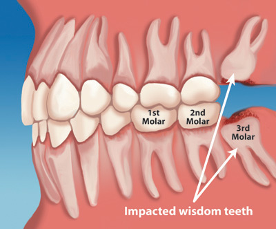 Wisdom Teeth Removal Kansas City