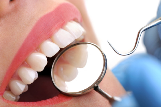 Oral Cancer Screenings Kansas City