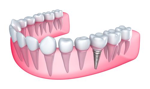 dentalimplants Livingston Dentists: What are Dental Implants?