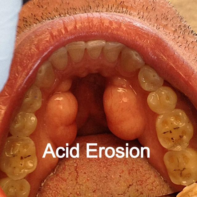 Acetaminophen Cause Stomach Acid