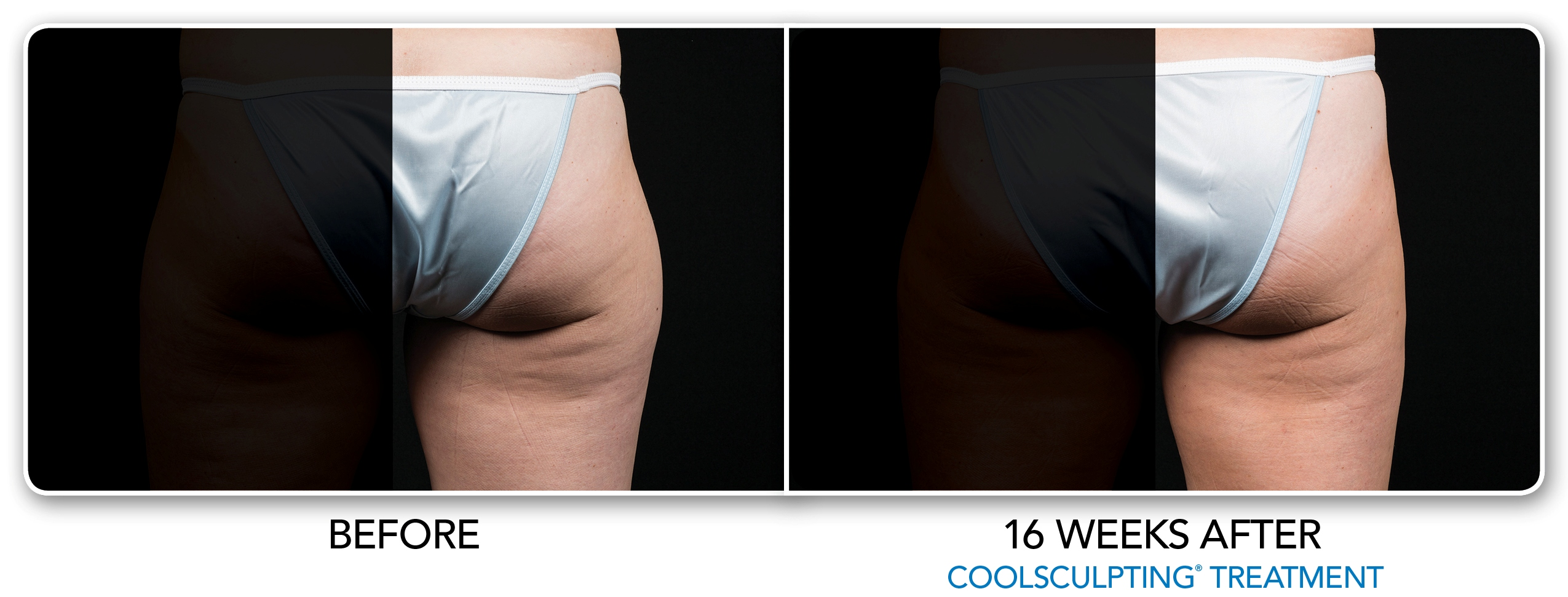 Coolsculpting Saddlebags Thigh Fat Connecticut Treatment