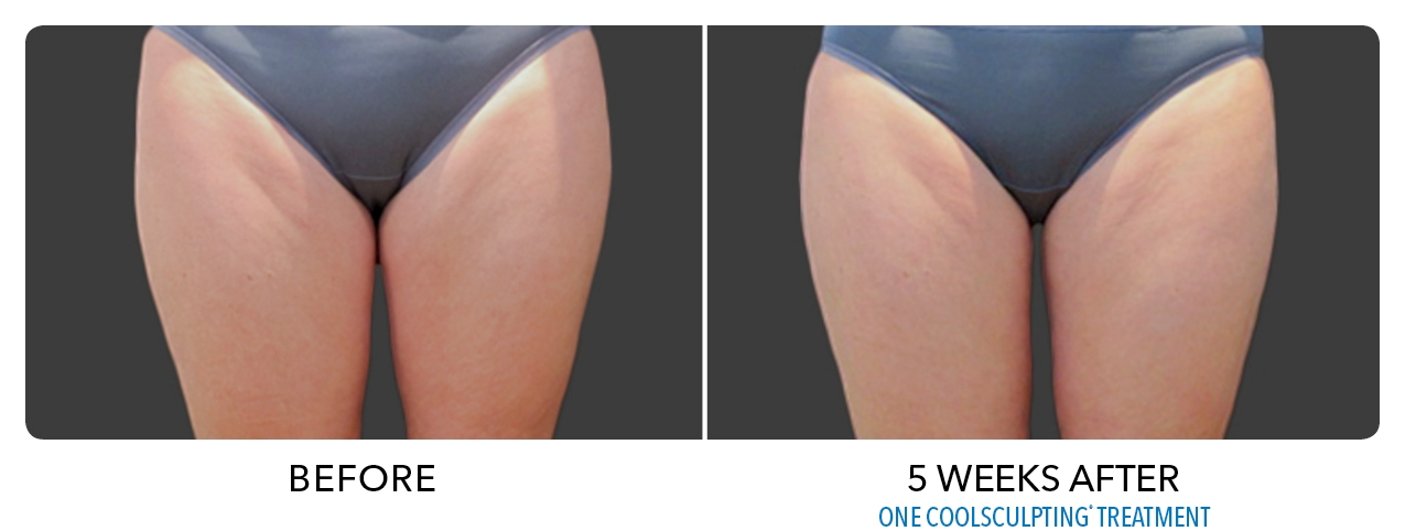 Inner Thigh Fat Removal 116