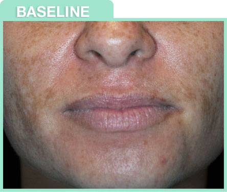 chemical peel before and after image ...