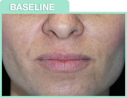 chemical peel before and after image chemical peel before and after image
