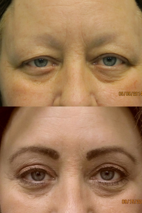 eyelid & brow lift