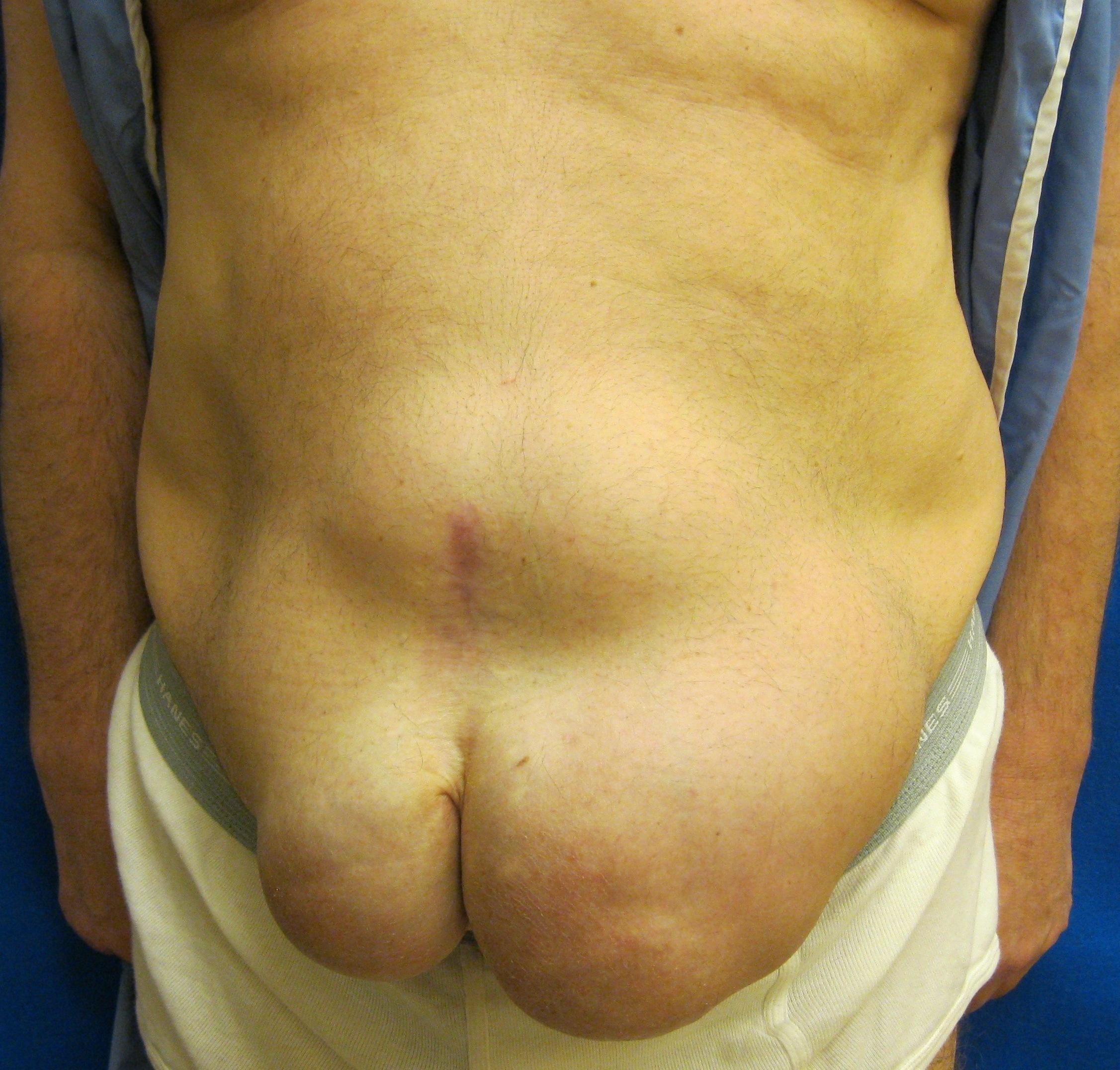 Hernia Repair Pig Skin Mesh Bridgeport Fairfield - Abdominal Hernia