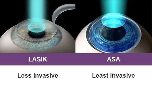 Vision Correction Lasik Advanced Surface Ablation Safety And