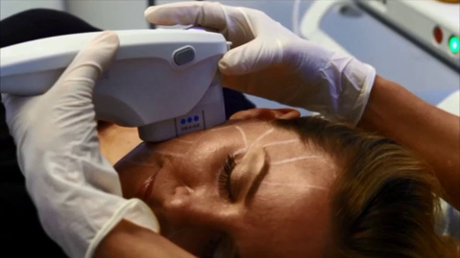 Ultherapy treats the deep layers of skin tissue without disturbing the surface of the skin
