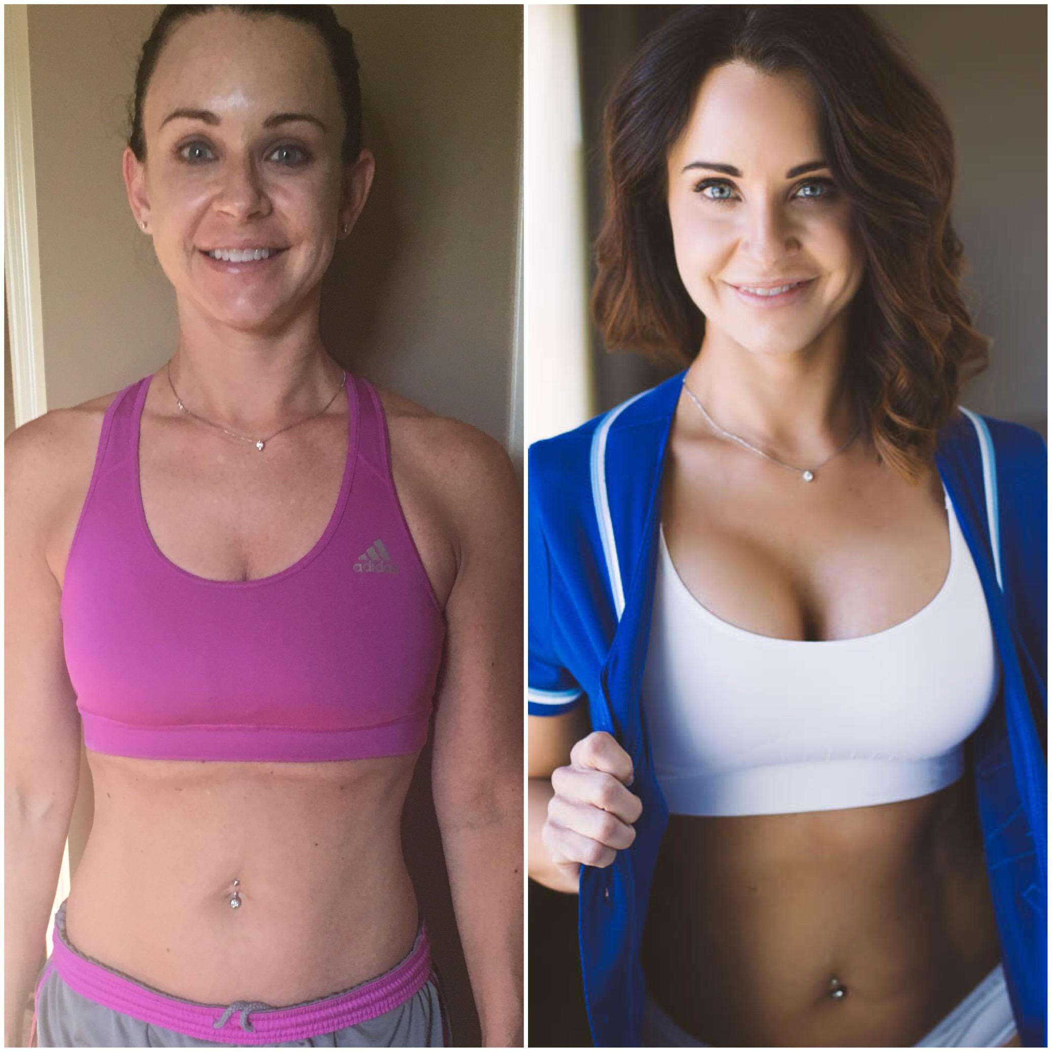 d0a7b1b2cc502 4 months Post Breast Surgery Kansas City - 4 months Post Breast ...