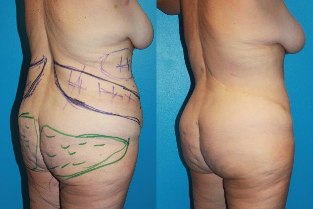 Oblique flankplasty before and after photo