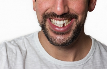 man with missing tooth needs dental bone graft