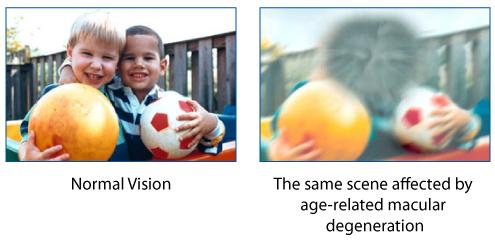 Improve you eyesight   Improve yourself, Healthy eyes