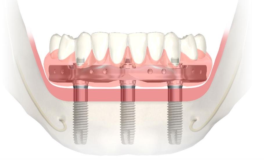 Trefoil Implant Concept