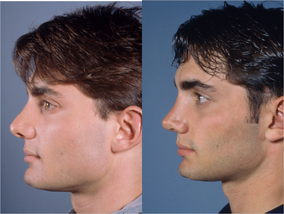 Male revision rhinoplasty patient