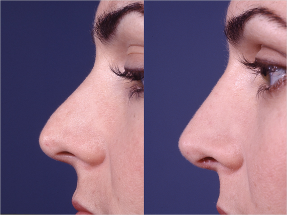 Female patient that underwent revision rhinoplasty