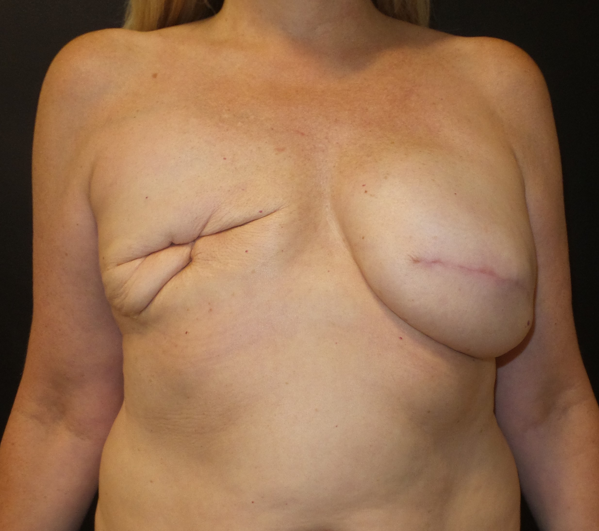 Breast tissue expander infection in breast reconstruction