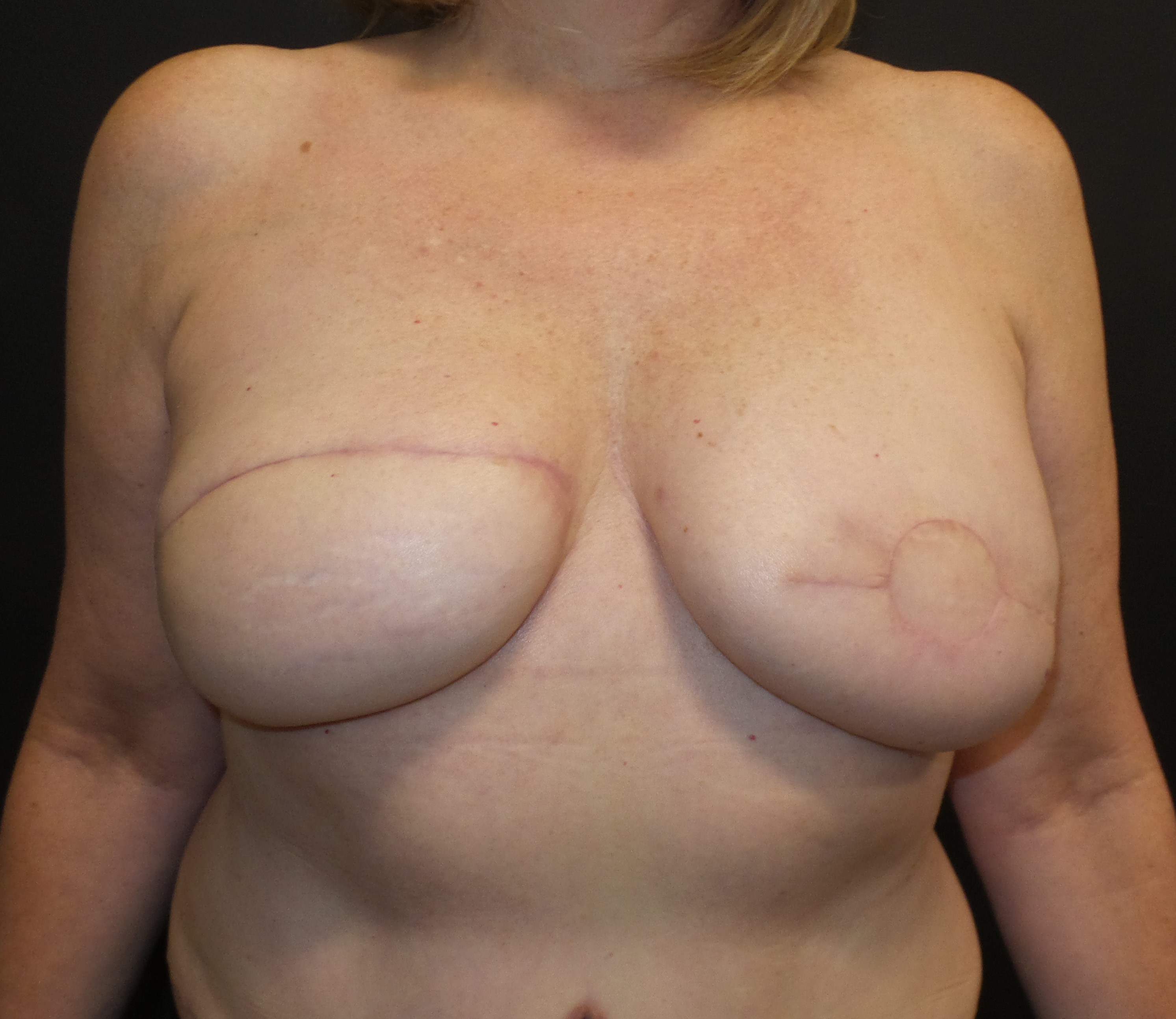DIEP flap after breast implant infection
